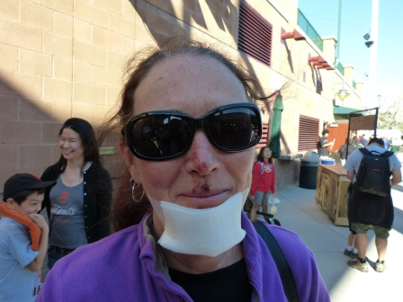 Diane with a gauze banadage on chine and scrapes visible on her upper lip and nose